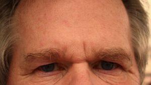 forehead-65059_640-pixabay